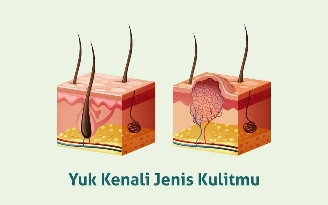 Kenali Jenis kulit Anda