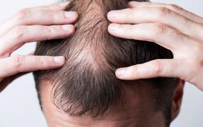 kebotakan karena kerontokan rambut